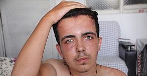 Antalya'da epilepsi hastası gencin darbedilmesi güvenlik kamerasınca kaydedildi
